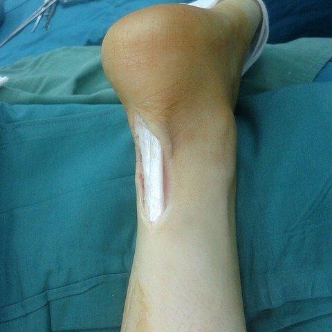 La tendinite du tendon d'achille : point faible du coureur